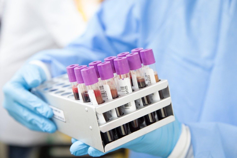 Análisis de sangre, laboratorio.